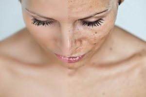 Treating pigmentation: nutrition & skincare