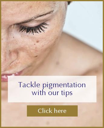 Pigmentation blog